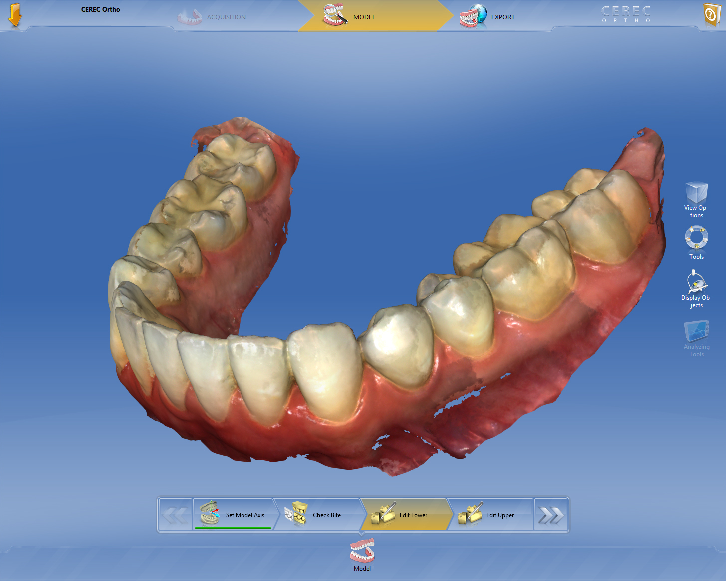 cerec ortho