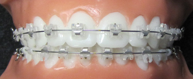 orthodontie adulte 1