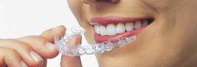 orthodontie adulte 3