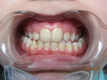 orthodontie enfant 1