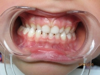 orthodontie enfant 2